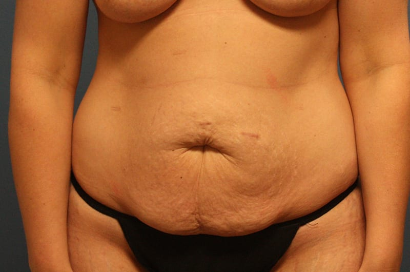 Tummy tuck patient before 1