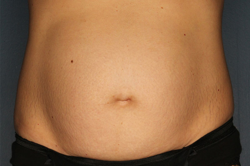 Tummy tuck patient before 2