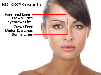 botox_diagram