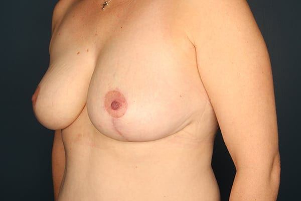 Mastopexy Patient 02 After - 2