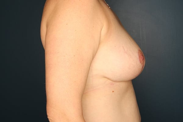 Mastopexy Patient 02 After - 3