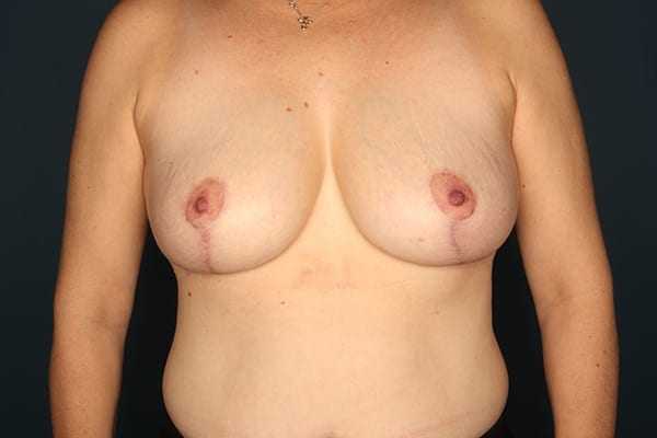 Mastopexy Patient 02 After - 1