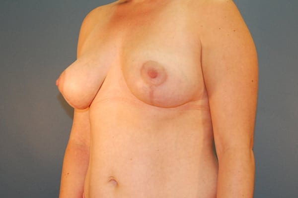 Mastopexy Patient 03 After - 2