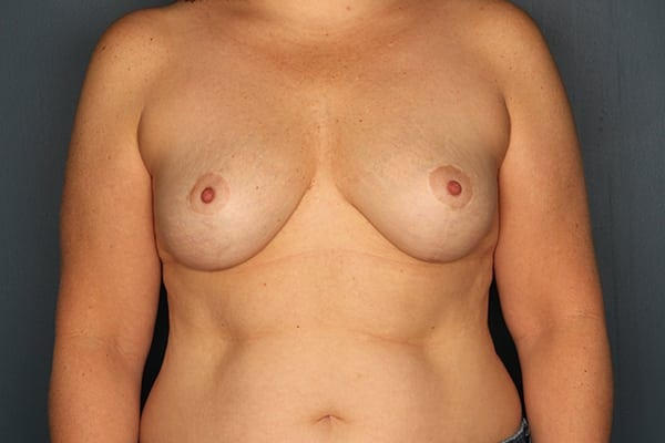 Mastopexy Patient 04 After - 1