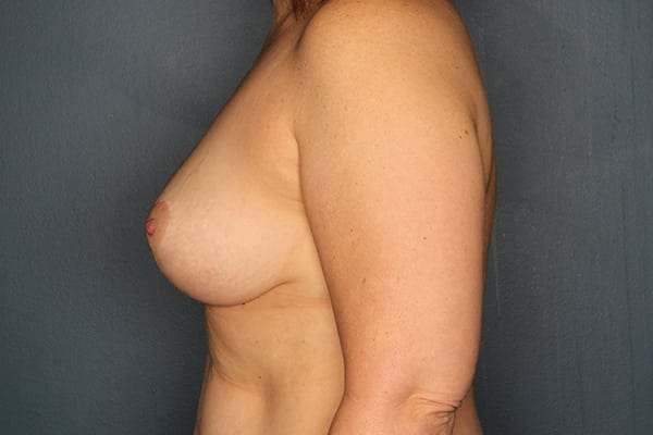 Mastopexy Patient 04 After - 3
