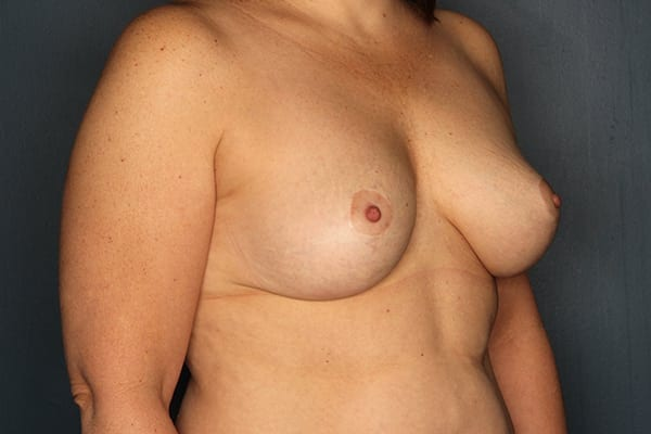 Mastopexy Patient 04 After - 2