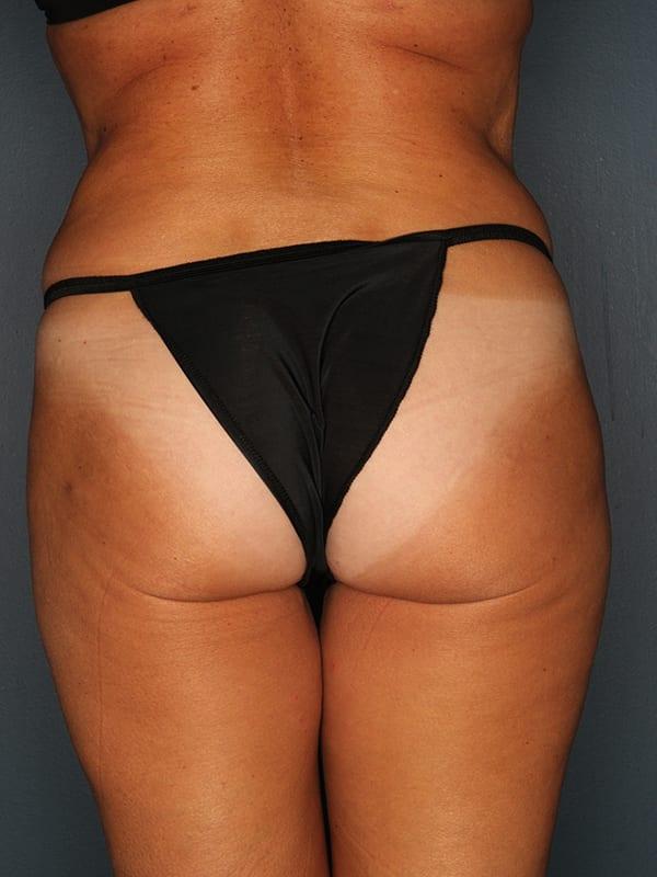 Liposuction Patient 01 After - 3