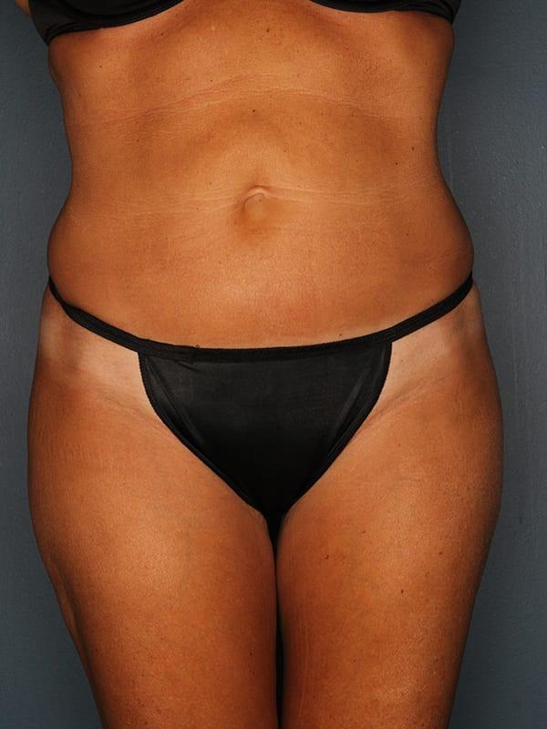 Liposuction Patient 01 After - 1