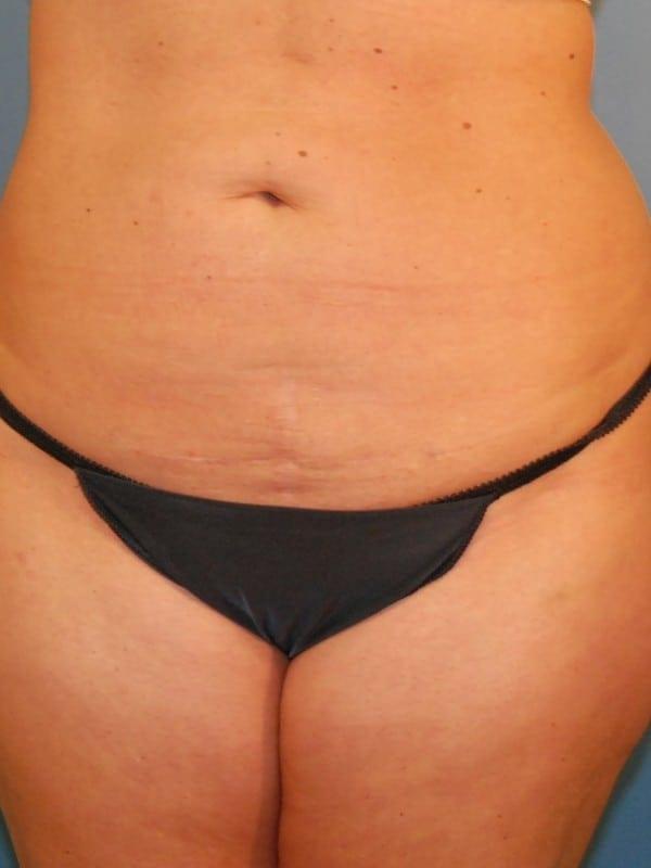Liposuction Patient 02 After - 1