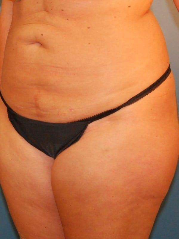 Liposuction Patient 02 After - 2