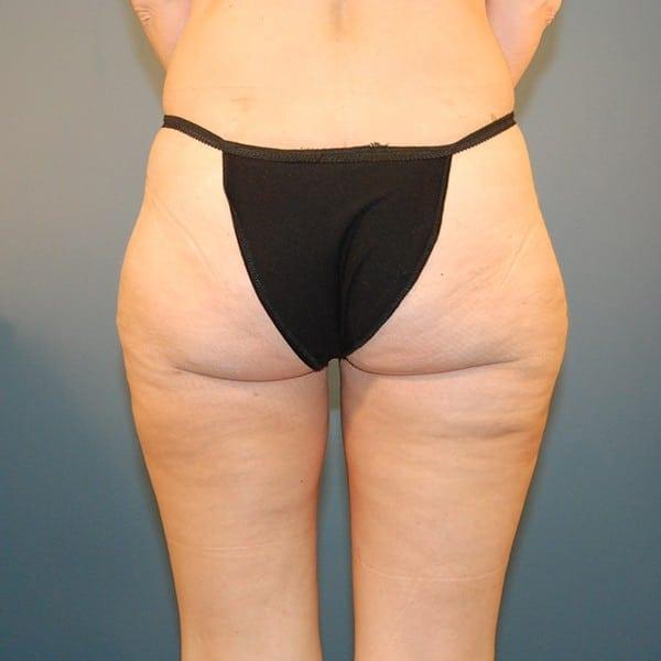Liposuction Patient 03 After - 2