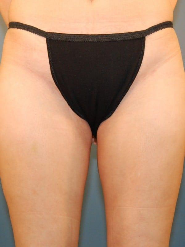 Liposuction Patient 03 After