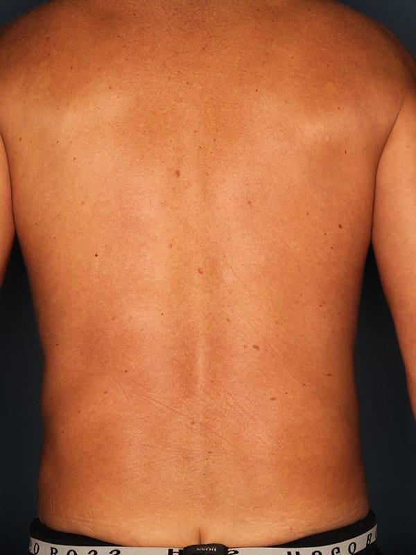 Liposuction Patient 04 After - 3