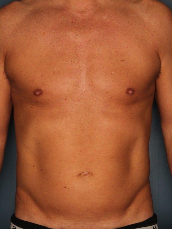 Liposuction Patient 04 After - 1