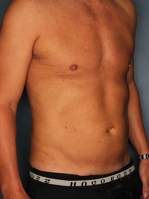 Liposuction Patient 04 After - 2