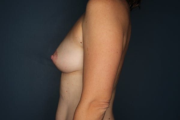 Mastopexy Patient 06 After - 3
