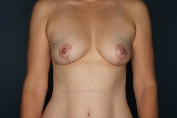 Mastopexy Patient 06 After - 1