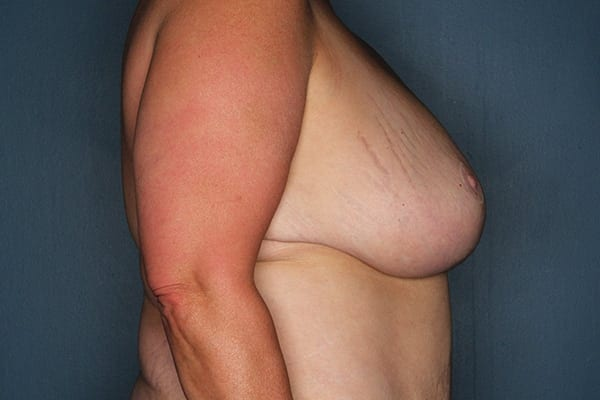 Breast Reduction Patient 04 After - 3