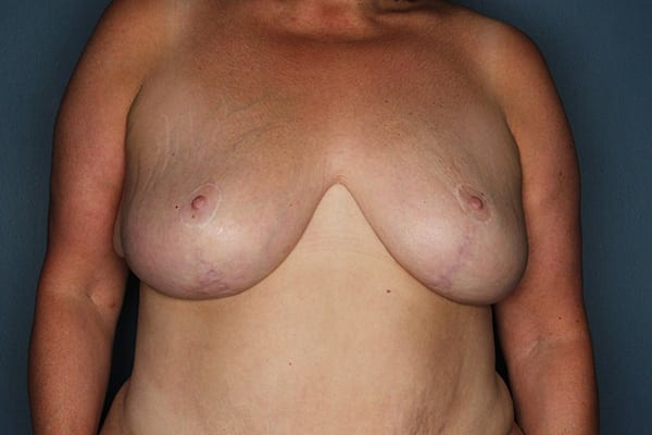 Breast Reduction Patient 04 After