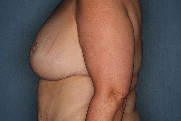 Breast Reduction Patient 04 After - 2
