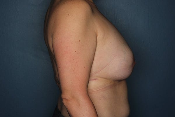 Latissimus Flap Reconstruction Patient 01 After - 3