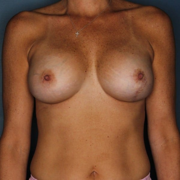 Breast Revision Patient 01 After