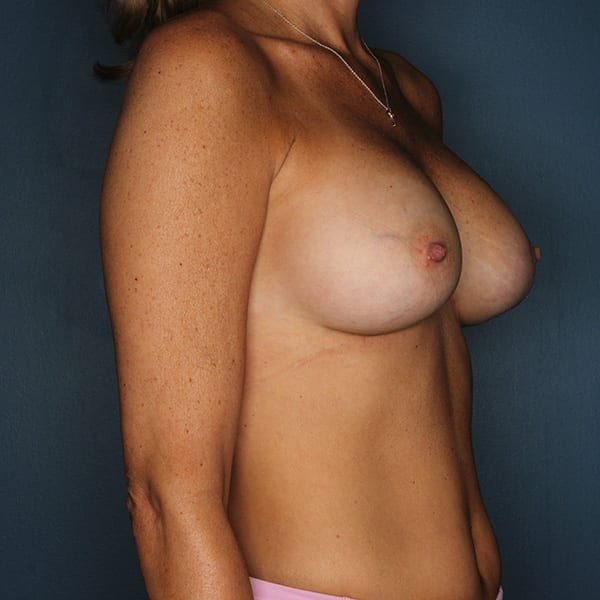 Breast Revision Patient 01 After - 3