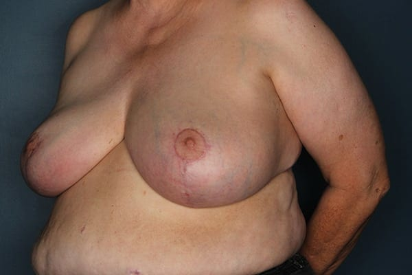 Breast Reduction Patient 05 After - 2