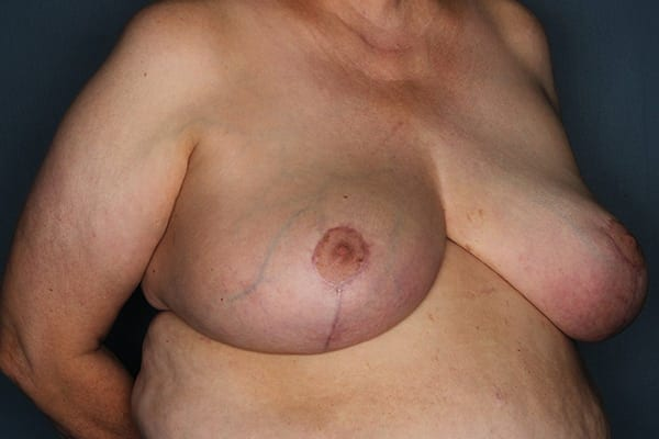 Breast Reduction Patient 05 After - 3