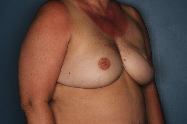 Latissimus Flap Reconstruction Patient 06 After - 3