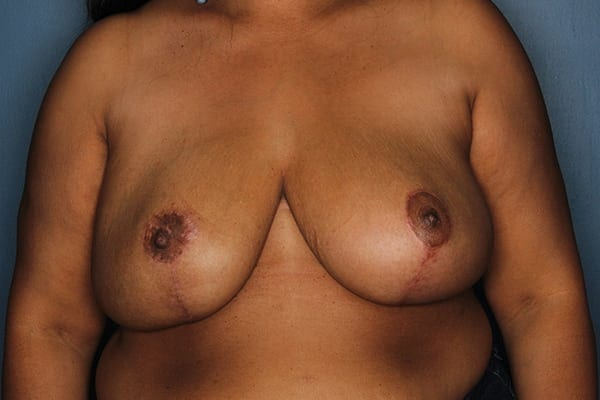 Breast Reduction Patient 06 After