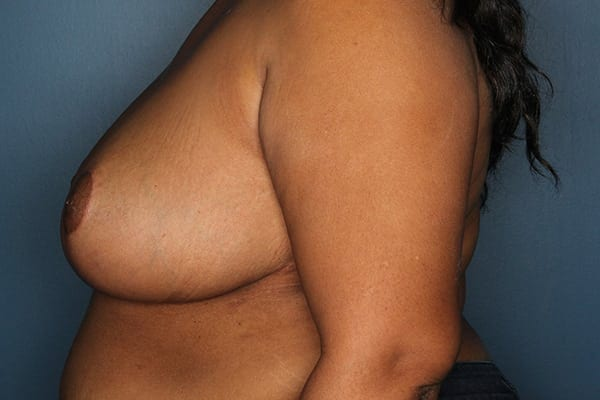 Breast Reduction Patient 06 After - 2