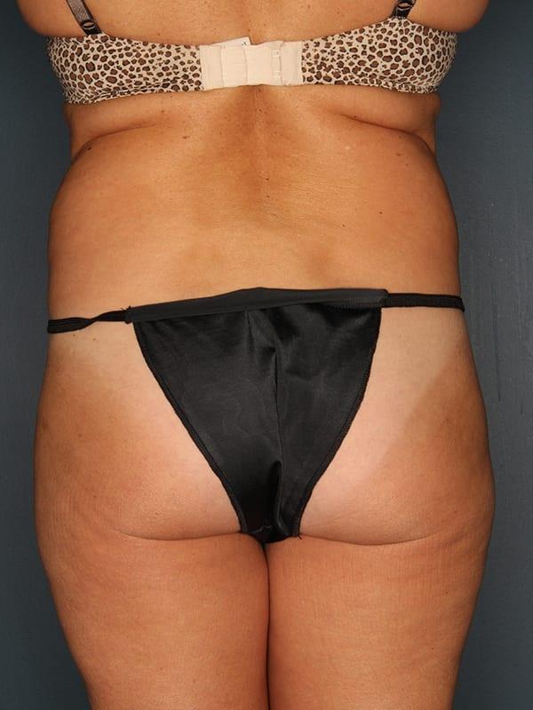 Liposuction Patient 01 Before - 3