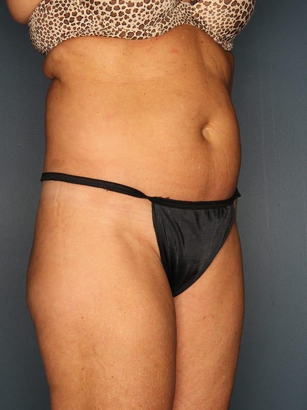 Liposuction Patient 01 Before - 2