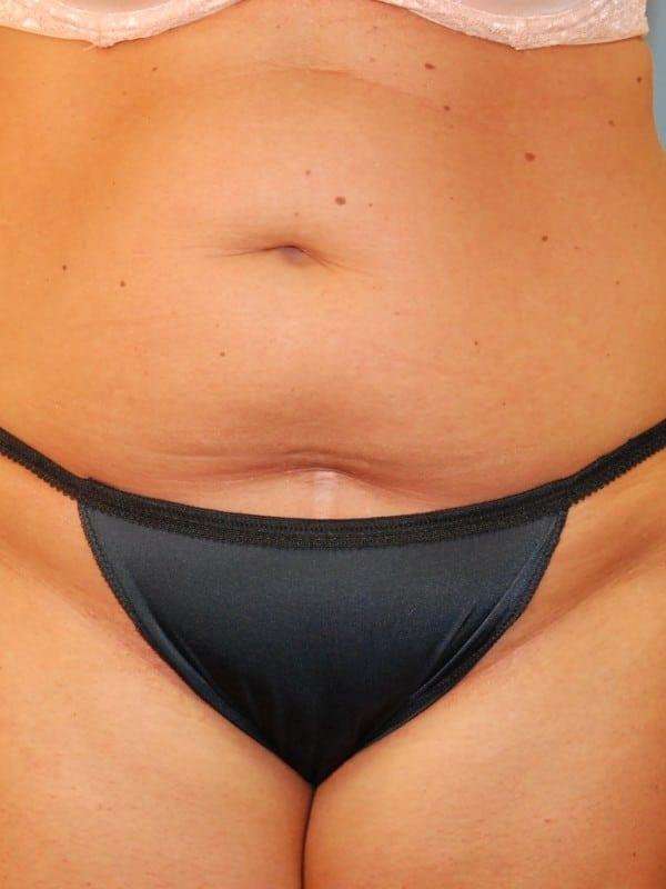 Liposuction Patient 02 Before - 1