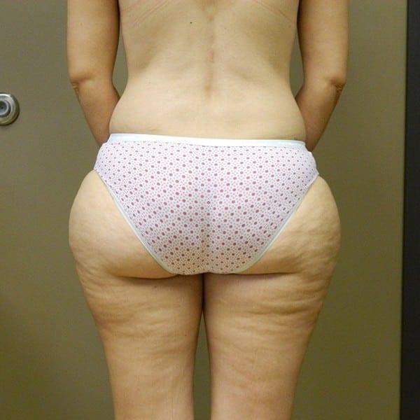 Liposuction Patient 03 Before - 2