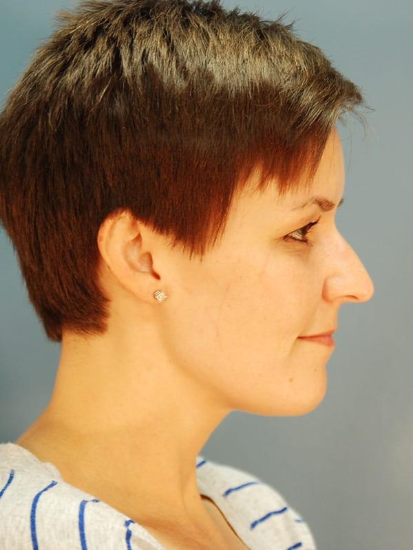 Rhinoplasty Patient 03 Before - 2