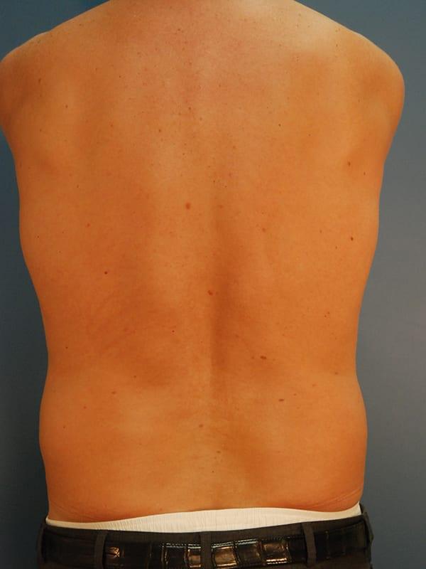 Liposuction Patient 04 Before - 3