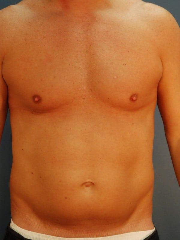 Liposuction Patient 04 Before - 1