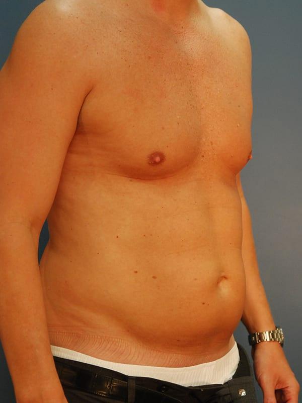 Liposuction Patient 04 Before - 2