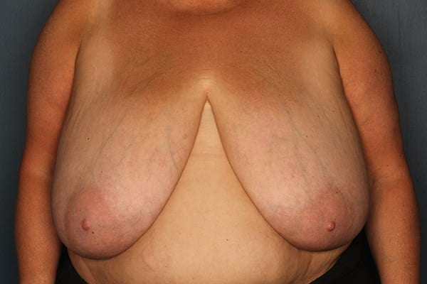 Breast Reduction Patient 04 Before