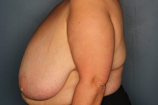 Breast Reduction Patient 04 Before - 2