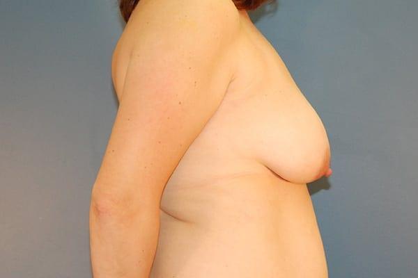 Latissimus Flap Reconstruction Patient 01 Before - 3