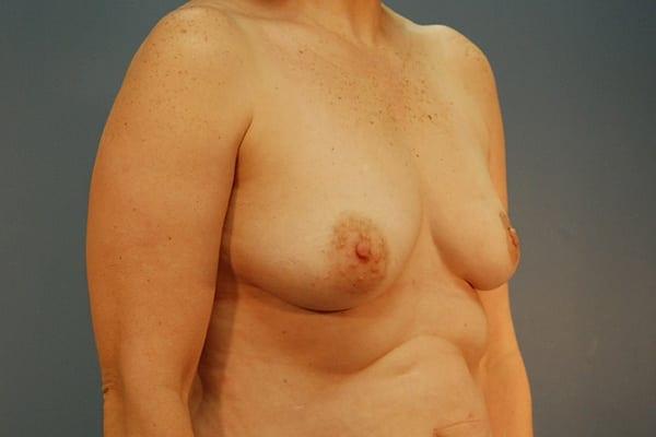 Latissimus Flap Reconstruction Patient 02 Before - 2