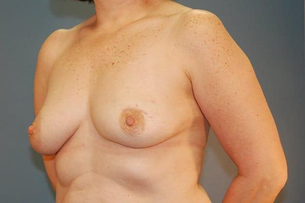 Latissimus Flap Reconstruction Patient 02 Before - 3