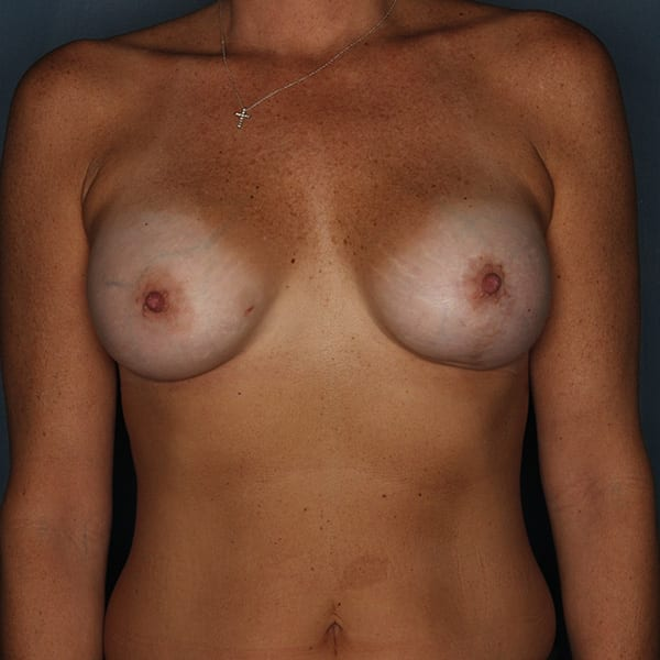 Breast Revision Patient 01 Before