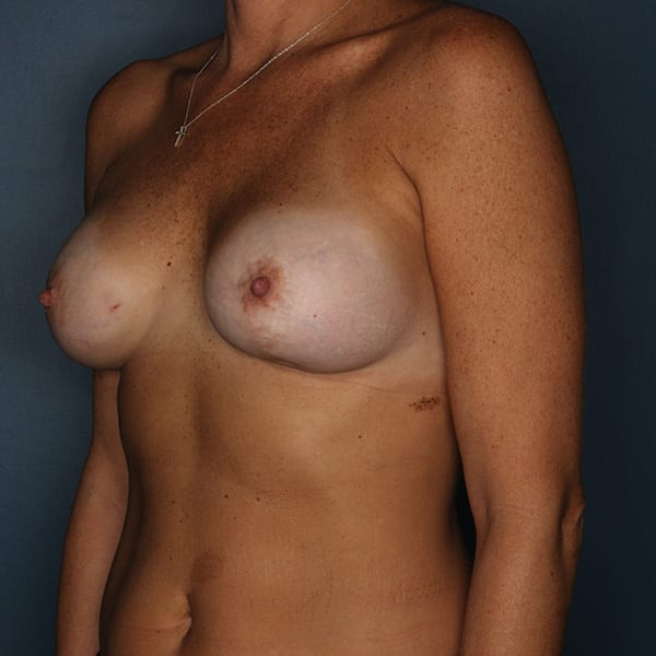 Breast Revision Patient 01 Before - 2