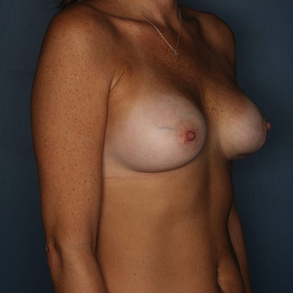 Breast Revision Patient 01 Before - 3