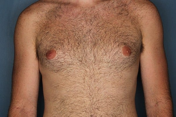 Gynecomastia Patient 01 Before - 1