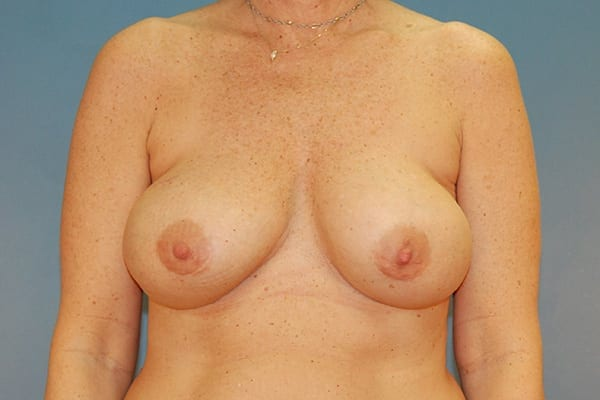 Implant-Based Reconstruction Patient 17 Before - 1